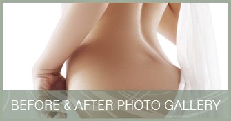 Cosmetic Surgery Before and After Pictures in Orlando, FL