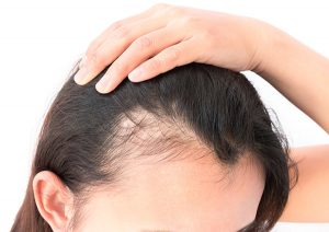 Female Hair Loss in Orlando, FL