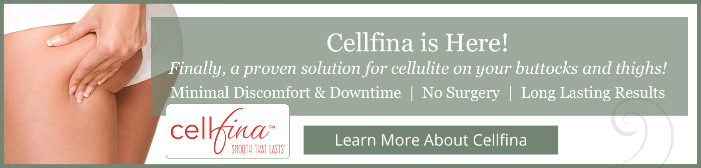Cellfina™ in Orlando, FL
