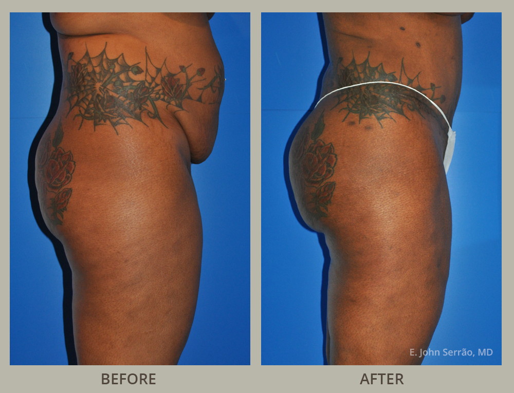 Tummy Tuck Before and After Pictures Orlando, FL