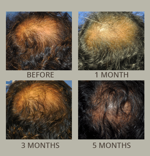 Hair Restoration Before and After Pictures Orlando, FL