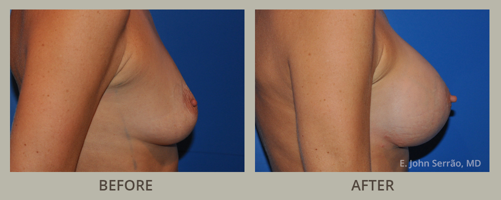 Breast Augmentation with Implants Before and After Pictures Orlando, FL