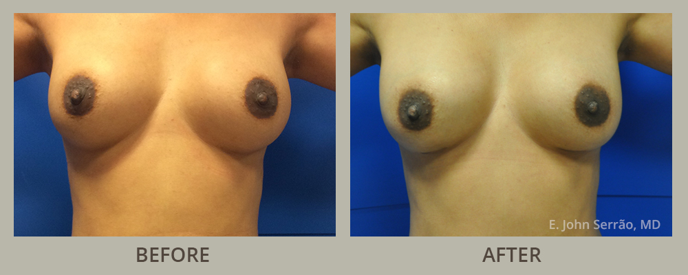 Breast Implant Revision Gallery