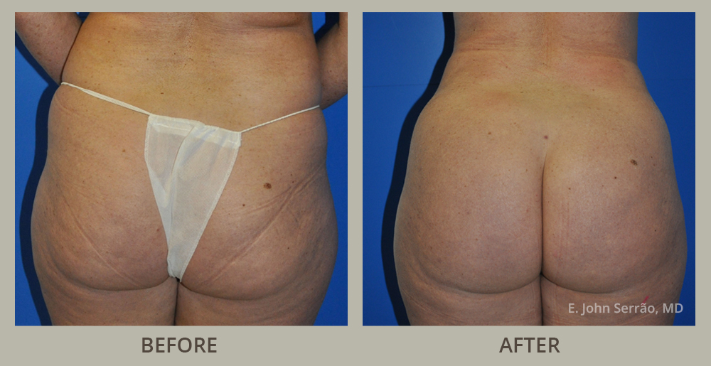 Brazilian Butt Lift Before and After Pictures Orlando, FL