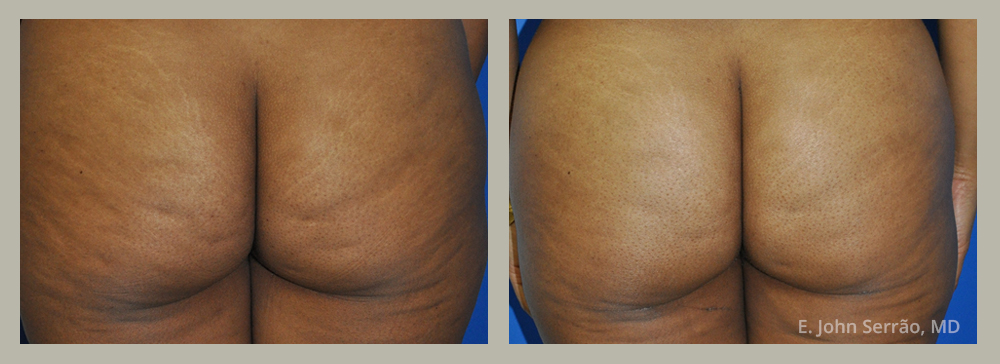 Cellulite Reduction Before and After Pictures Orlando, FL