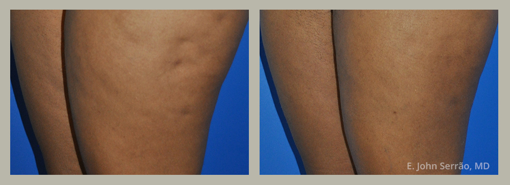 Cellulite Reduction Gallery