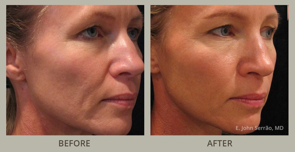 Florida facial rejuvenation
