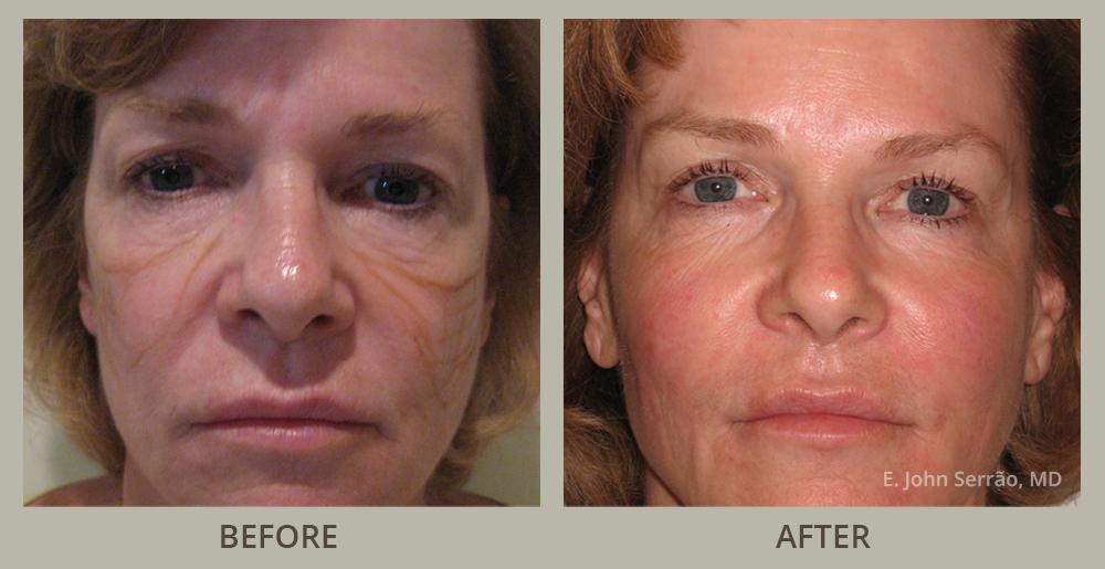 Are not Facial orlando rejuvenation