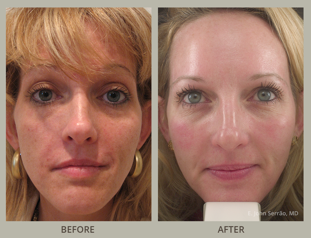 Facial Rejuvenation Before and After Pictures Orlando, FL