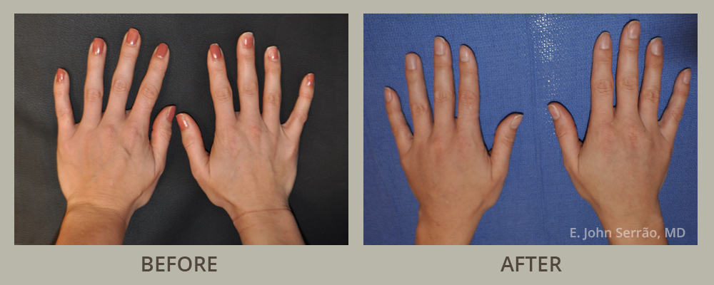 Hand Rejuvenation Before and After Pictures Orlando, FL