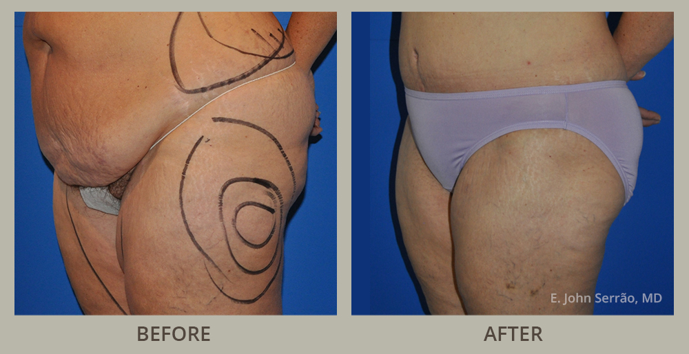 Abdominoplasty Gallery