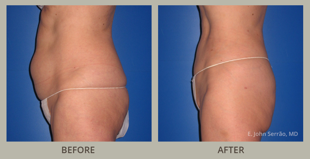 Liposuction Before and After Pictures Orlando, FL