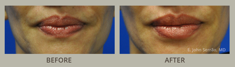 Lip Injections/Lip Rejuvenation Before and After Pictures Orlando, FL