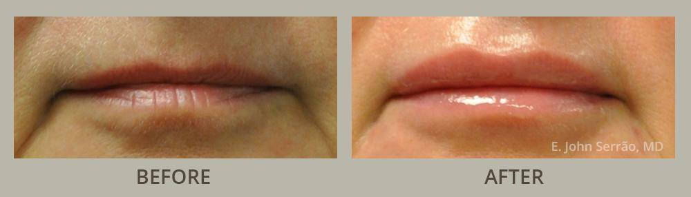 Lip Rejuvenation Gallery