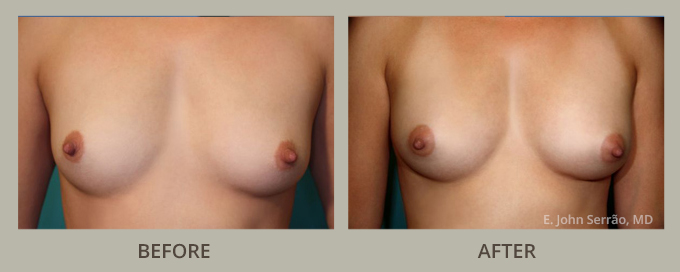 Breast Augmentation with Fat Transfer Before and After Pictures Orlando, FL