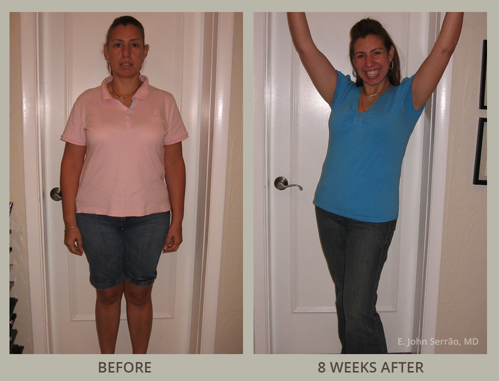 Weight Loss & Wellness Center Before and After Pictures Orlando, FL