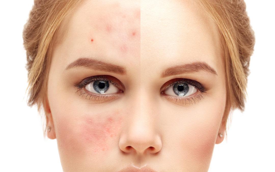 The Latest in Acne Skincare