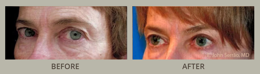 Non-Surgical Blepharoplasty Before and After Pictures Orlando, FL