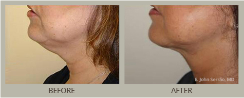 ThermiTight Before and After Pictures Orlando, FL
