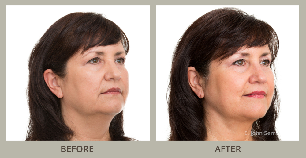Non Surgical Face Lift Before and After Pictures in Orlando, FL