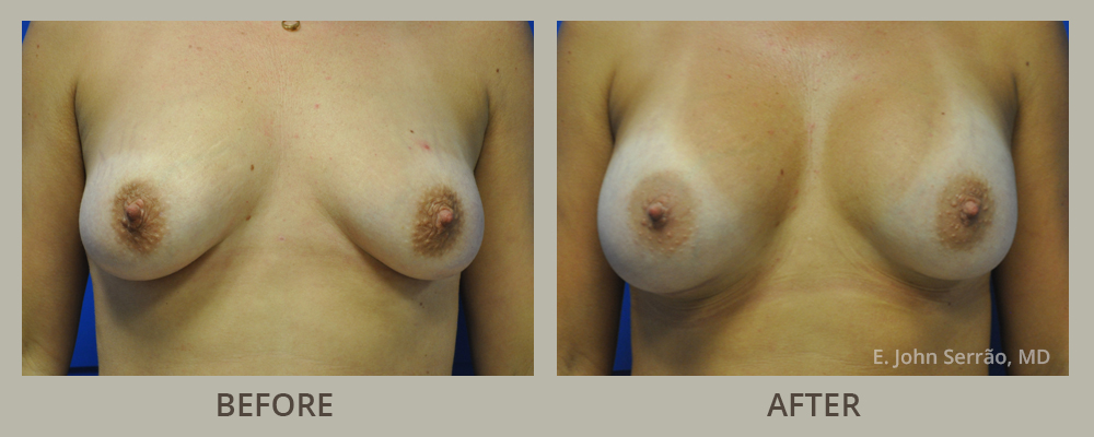 Breast Augmentation with Implants front