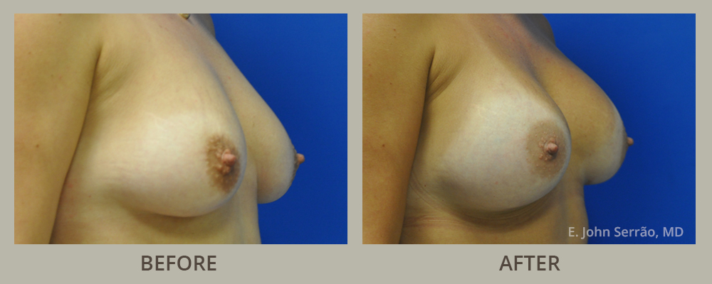 Breast Augmentation with Implants side